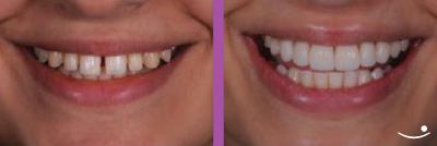Lente de contato para dentes