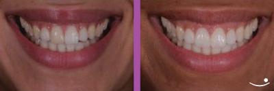Facetas dentárias | MD Clínica