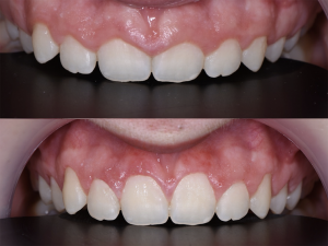 Artigo MD Clínica | Sorriso gengival antes e depois