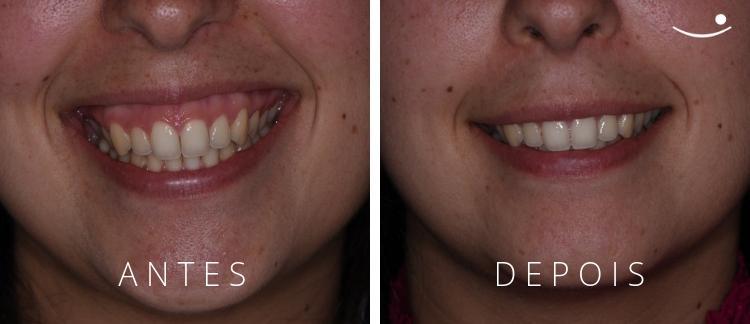 Correção Sorriso Gengival com Botox