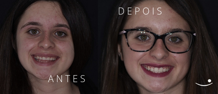 Madalena Antes e Depois | Sorriso gengival antes e depois