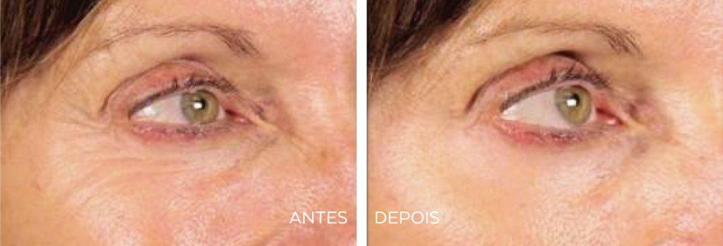 Antes e Depois | Tratamento Estética Facial | SmoothEye