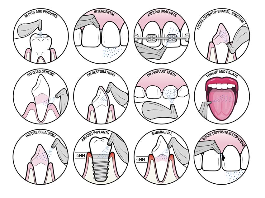 MD Clínica | Higiene oral - Tratamento AirFlow